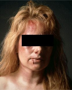 picture of a beaten woman